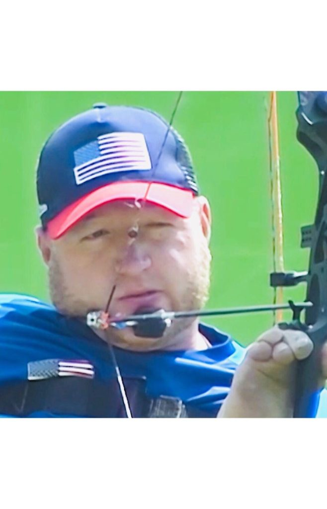 Matt Stutzman is an American Archer, also a father and an inspiration, who won ...